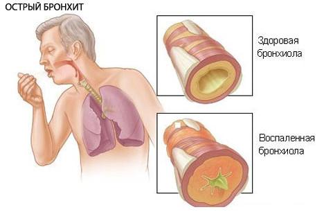 Основной симптом бронхита - это кашель