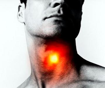 Симптомы и признаки трахеита