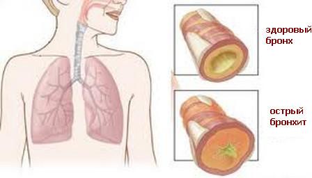 ostryi-bronxit