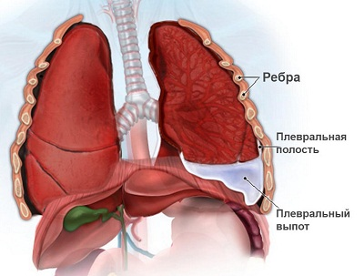 Выпотной или экссудативный плеврит