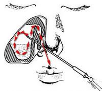 Лечение гайморита пункцией (прокол)