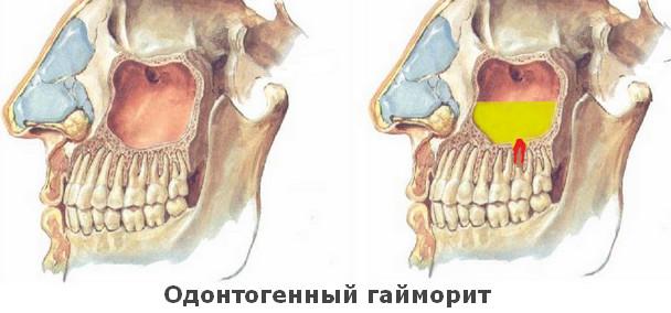 Одонтогенный гайморит его причины, симптомы и лечение