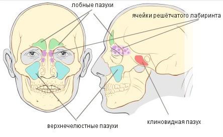 Синусит - воспаление синусов