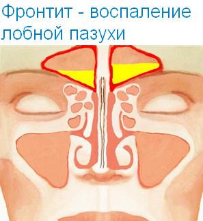 Признаки и симптомы фронтита