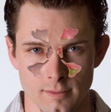 Хронический синусит симптомы и лечение заболевания