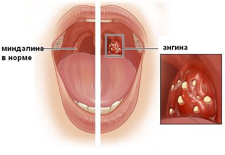Ангина и похожие заболевания
