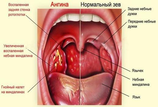 Ангина (тонзиллит) у взрослого