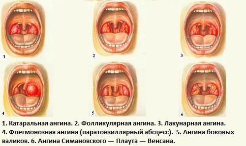 Классификация ангины по типу течения болезни