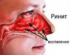 Ринит (воспаление слизистой носа)