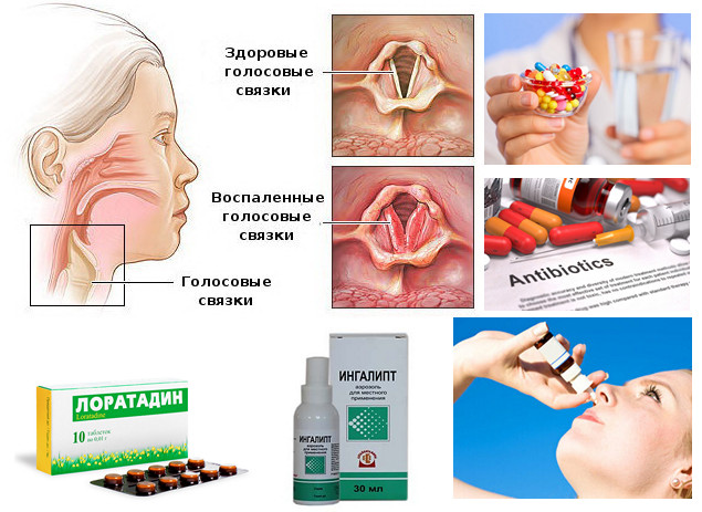 Различные лекарства от ларингита