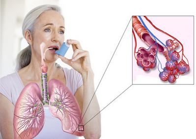 Лечение астмы домашних условиях