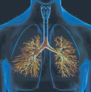 Внебольничная пневмония